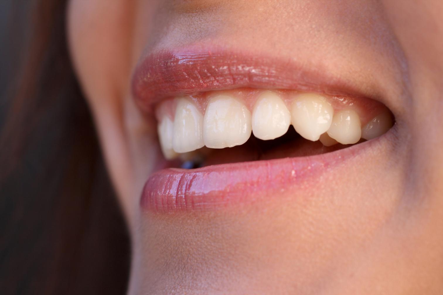 Lachen, fröhlich, Mund und Zähne