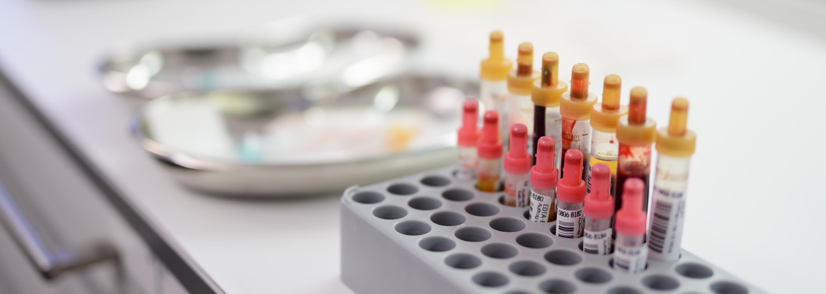 Blutproben beim Arzt oder im Labor - Blut abnehmen