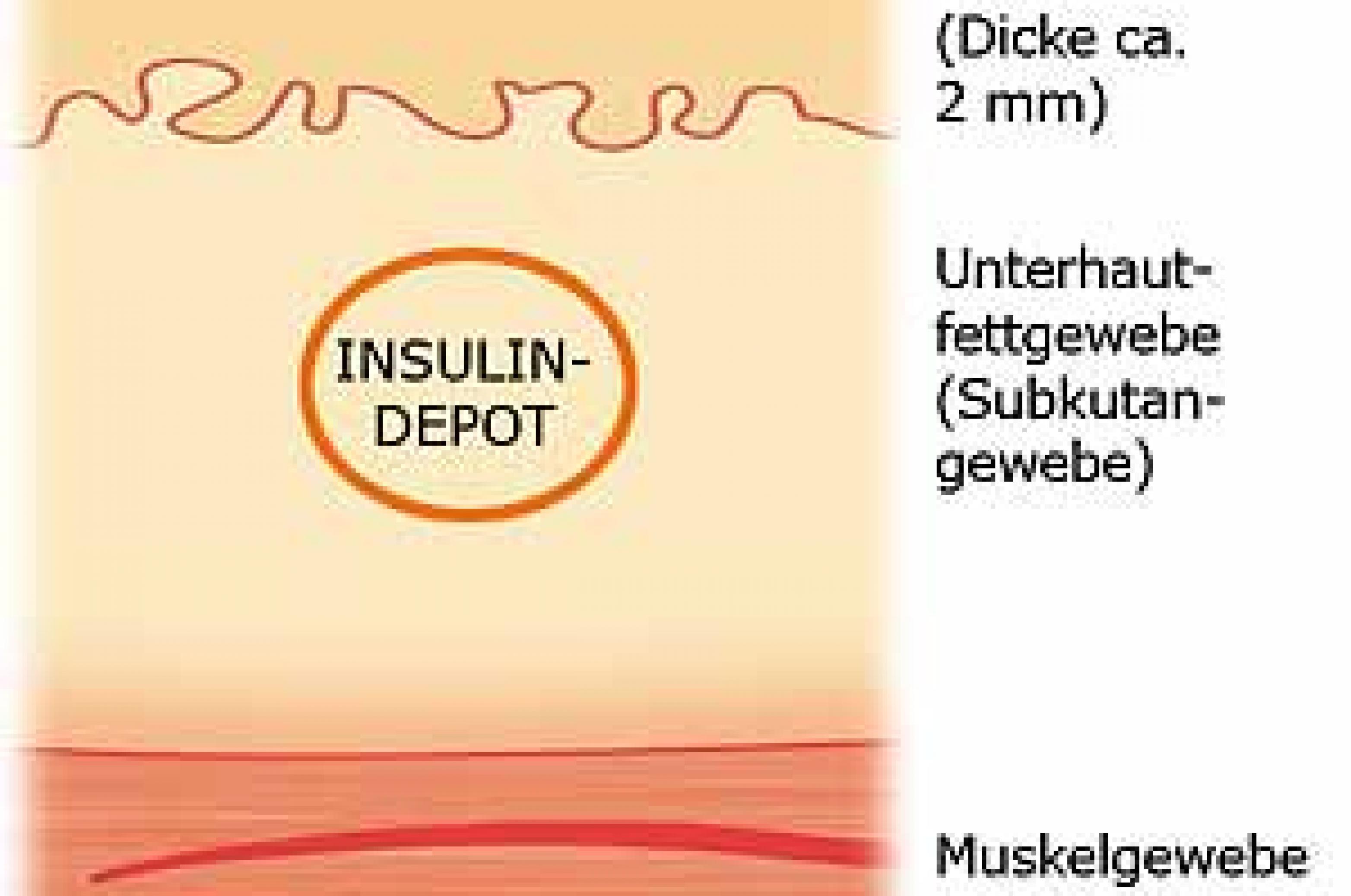 Grafik Insulindepot